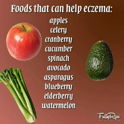 Eczema: Definition and the Causes